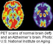 Fluorescent Scans May Have Potential to Track Alzheimer's Progression