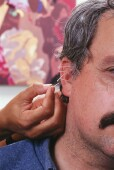 Ear Acupuncture May Hold Promise for Weight Loss