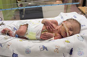 Brain Chemicals May Signal Which Preemies Will Have Delays