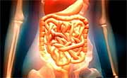 Post-Surgical Tests Might Help Spot Colon Cancer's Return