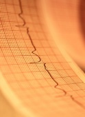 Implanted Monitor May Help Spot Dangerous Heart Rhythm After Stroke