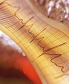 Common Irregular Heartbeat May Pose Risks for Surgery Patients