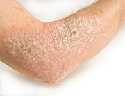 Psoriasis Treatment Choices Improving, FDA Says