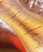Irregular Heartbeat Doubles Risk for 'Silent Strokes,' Review Suggests
