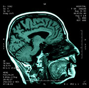 Brain Scans Yield Clues to Future Stroke Risk