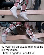 Noninvasive Stimulation Gets Legs Moving After Spinal Cord Injury